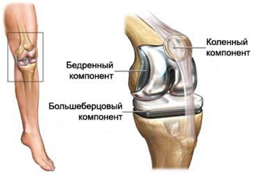 Суставы искуственные коленный операция по восстановлению передней крестообразной связки коленного сустава