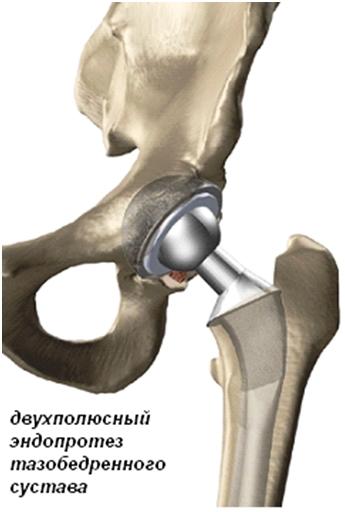 Купить протезы тазобедренного сустава артроскопический дебридмент коленного сустава цена